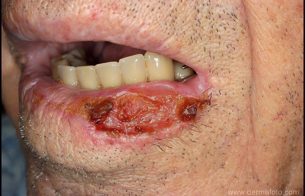 Carcinoma espinocelular (CEC)ou de células escamosas
